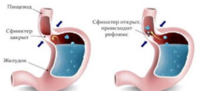 Средства от кашля при язве желудка