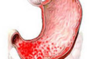 Хронический умеренно выраженный антральный гастрит активность hp