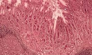 Хронический гастрит с гиперплазией лимфоидных фолликулов